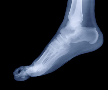 Injury: Top Of The Foot Pain
